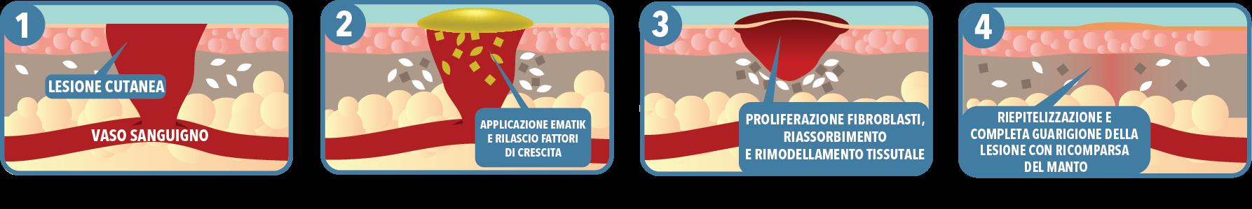 Come funziona il Patch PRP